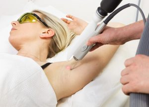 Laser Hair Removal Wirral